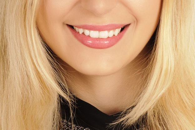 Need to Know About Porcelain Veneers
